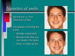 varieties of smile20