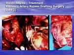 stable angina treatment coronary artery bypass grafting surgery cabg