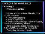 s ndrome de prune belly17