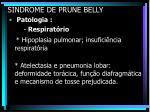 s ndrome de prune belly18