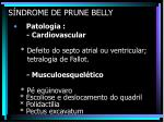 s ndrome de prune belly19