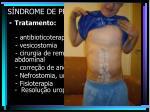 s ndrome de prune belly21