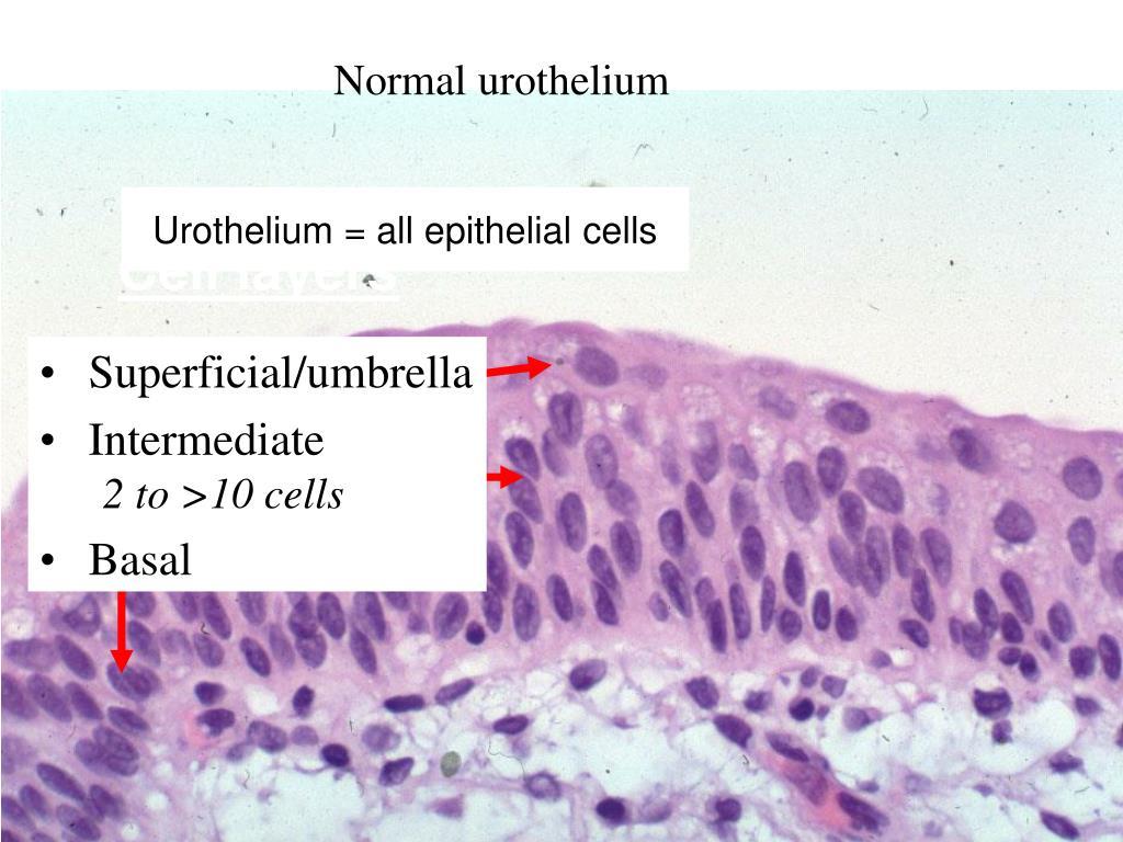 Normal urothelium