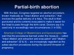 partial birth abortion53