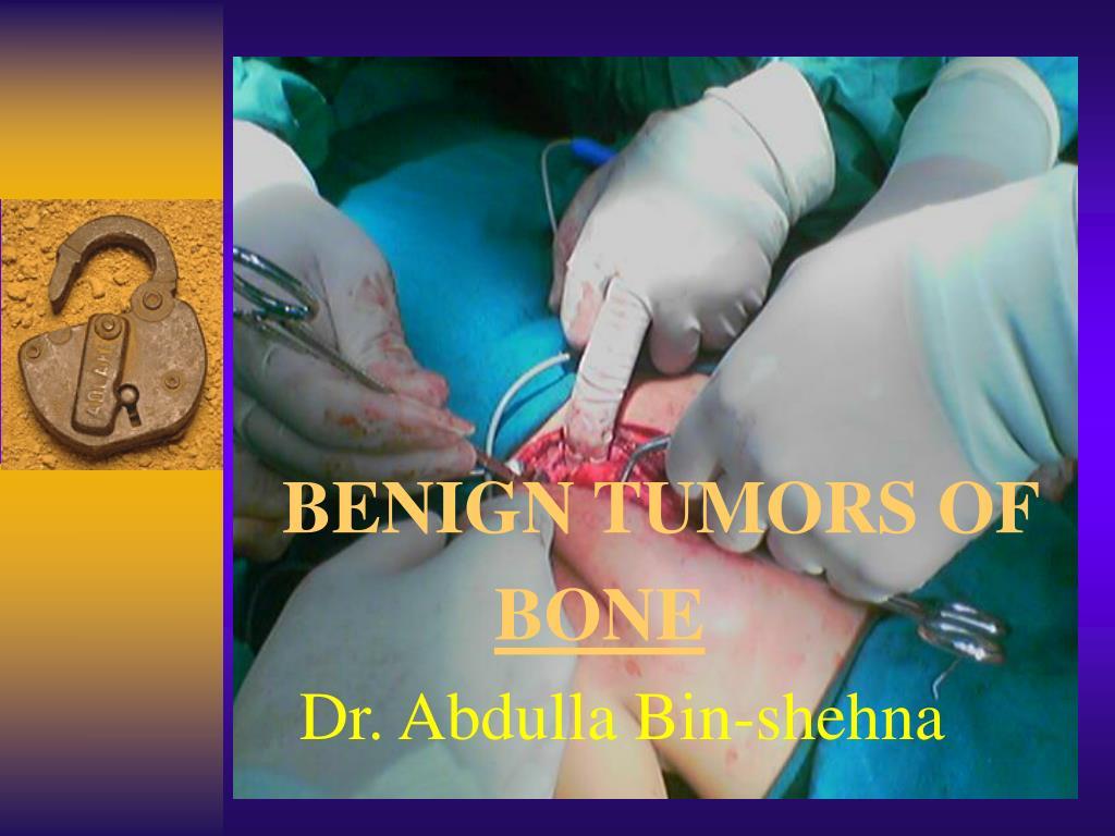 benign tumors of bone dr abdulla bin shehna l.