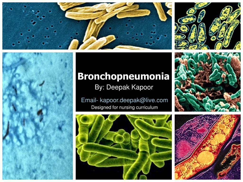 bronchopneumonia l.