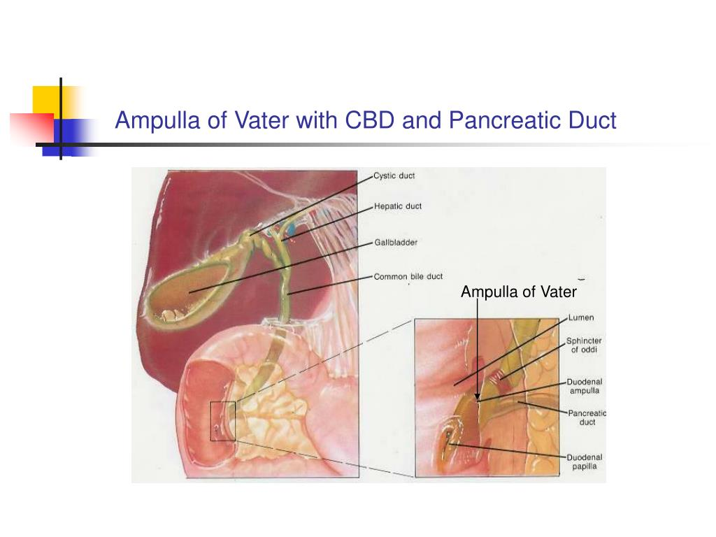 ampulla of vater cancer - HD1024×768