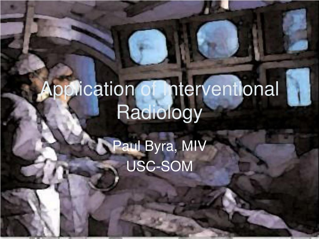 application of interventional radiology l.