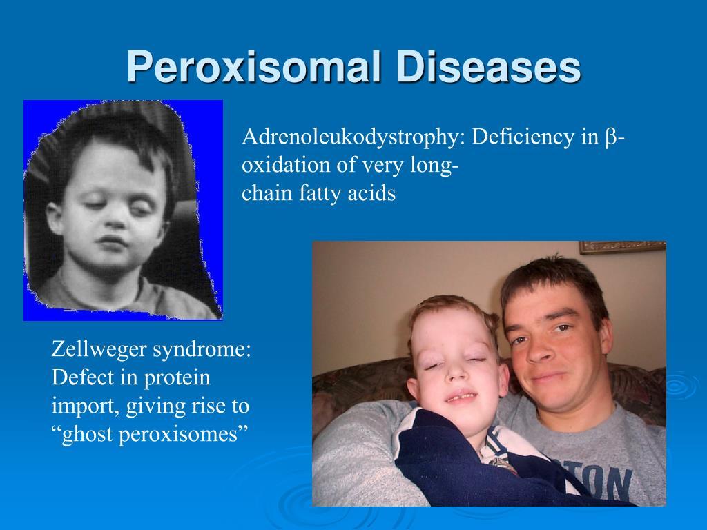 Peroxisomal Diseases