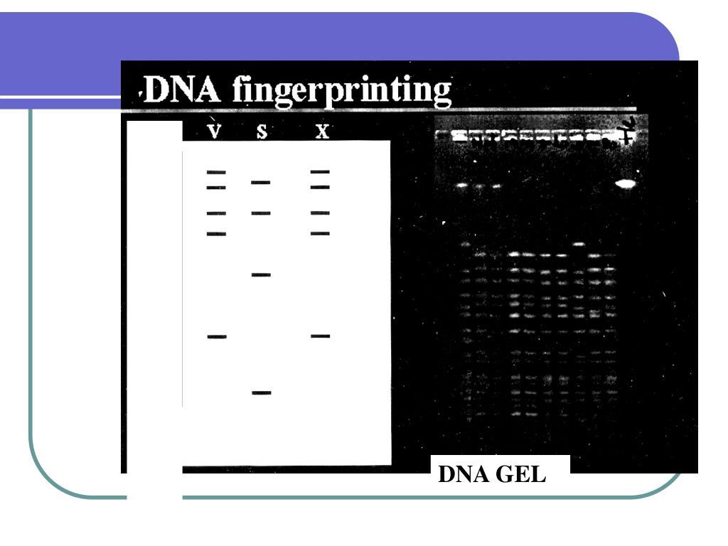 DNA GEL