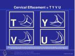 cervical effacement t y v u