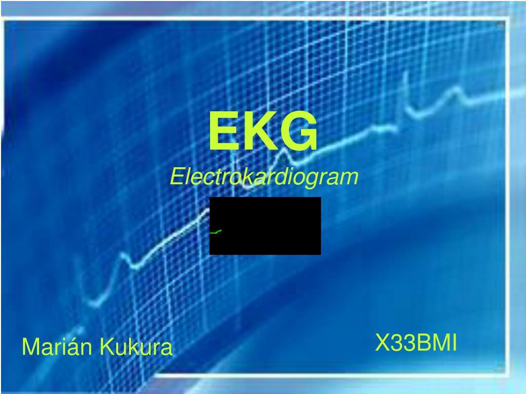 ekg electrokardiogram l.