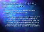 une microd l tion 7q11 23 fish support de ce syndr me