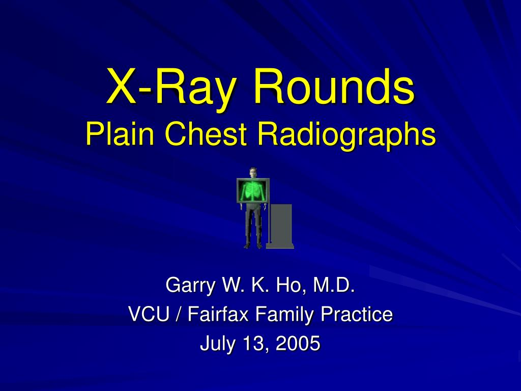 x ray rounds plain chest radiographs l.