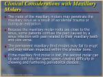 clinical considerations with maxillary molars