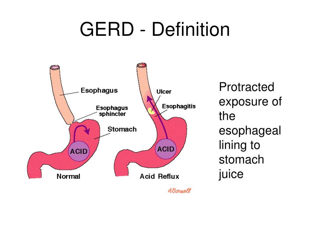 GERD - Definition