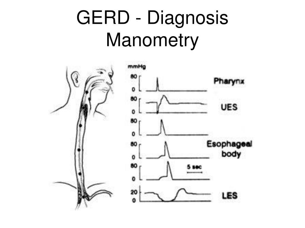 GERD - Diagnosis