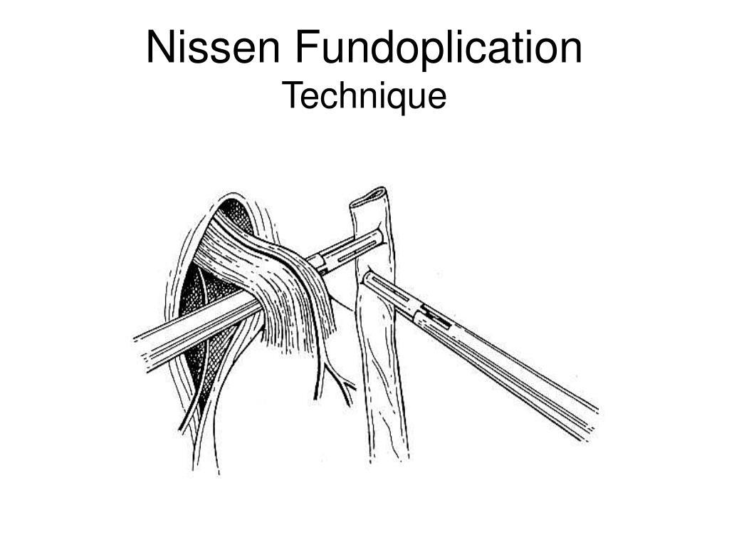 Nissen Fundoplication