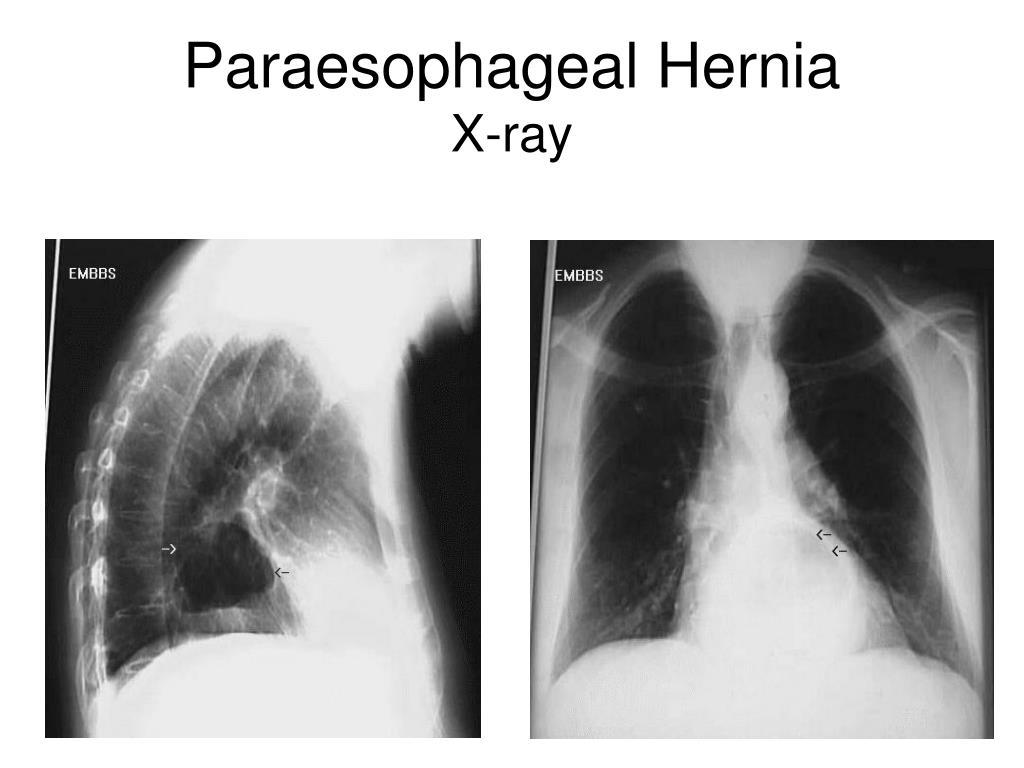 Paraesophageal Hernia