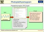 photoplethysmogram