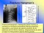 fractura hangman s