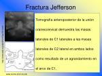 fractura jefferson