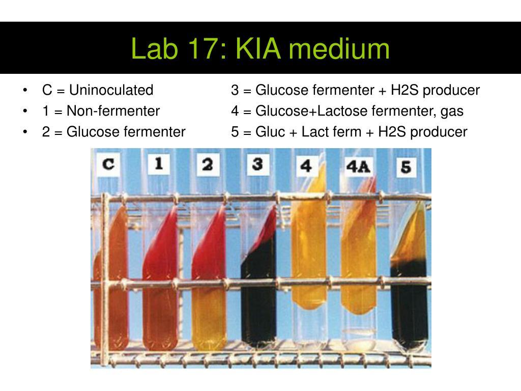 Lab 17: KIA medium