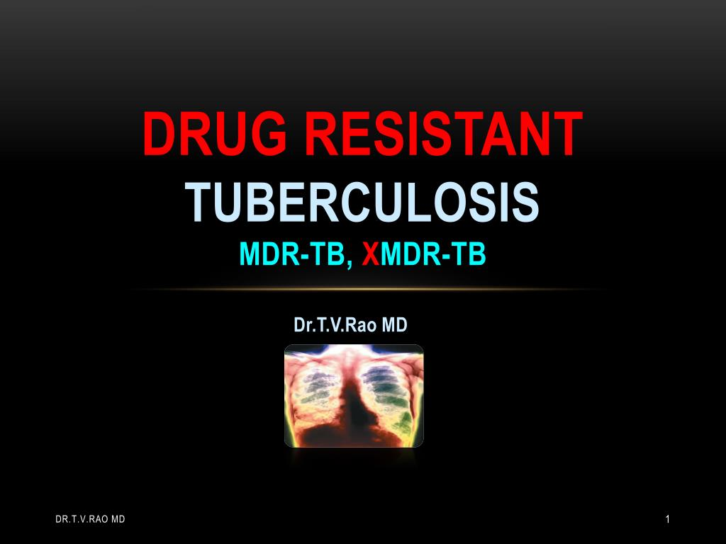 drug resistant tuberculosis In 2016, there were 600,000 new cases of drug-resistant tb 240,000 of those people died the length of the antibiotic regimens is the primary culprit for tb's growing drug resistance.