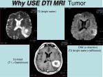 why use dti mri tumor