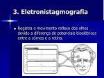 3 eletronistagmografia