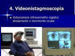 4 videonistagmoscopia