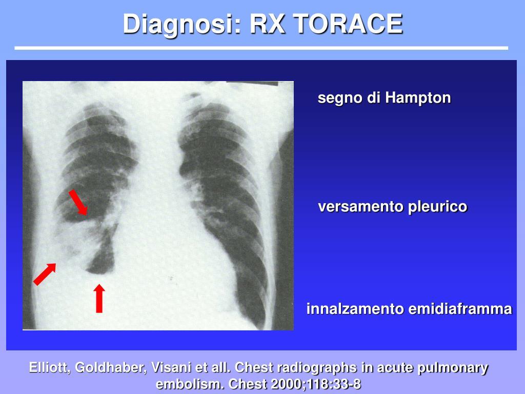 Diagnosi: RX TORACE