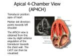 apical 4 chamber view ap4ch