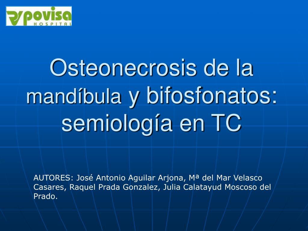 osteonecrosis de la mand bula y bifosfonatos semiolog a en tc l.