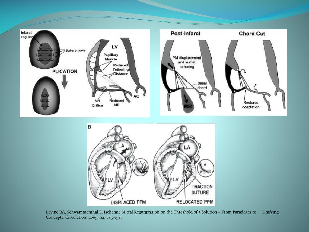 Levine RA, Schwammenthal E. Ischemic Mitral Regurgitation on the Threshold of a Solution – From Paradoxes to 	Unifying 	Concepts. Circulation. 2005; 112: 745-758.