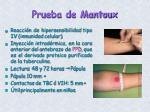 prueba de mantoux
