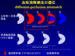 diffusion perfusion mismatch