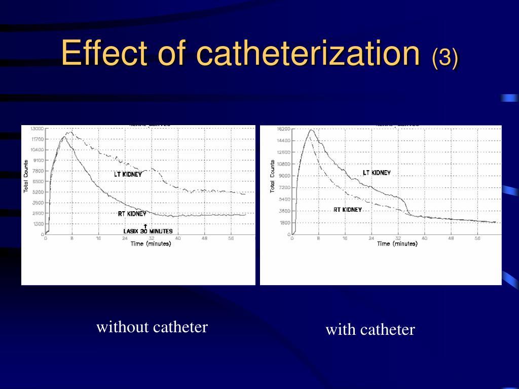 Effect of catheterization
