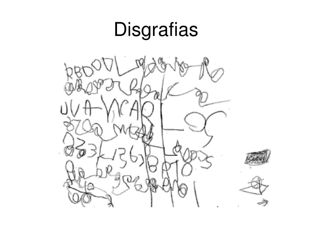 Disgrafias