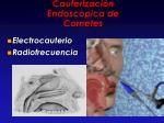 cauterizaci n endoscopica de cornetes