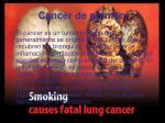 cancer de pulmon2