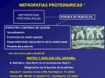 nefropatias proteinuricas