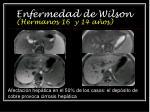 enfermedad de wilson hermanos 16 y 14 a os