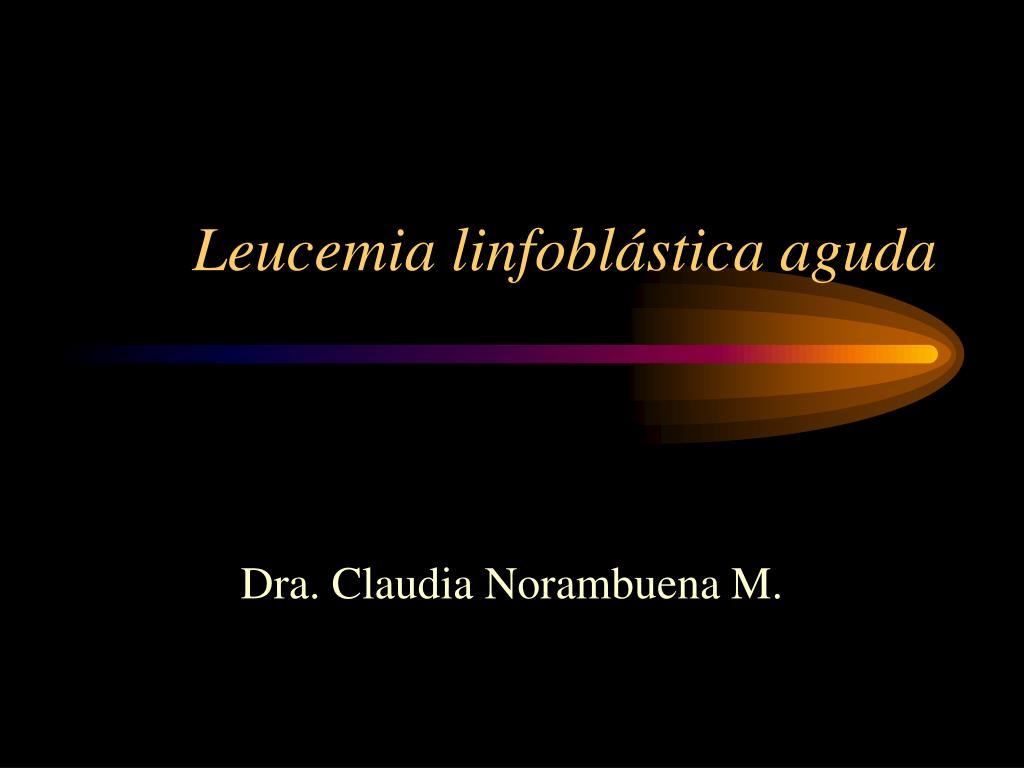leucemia linfobl stica aguda l.