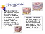 lesiones macrosc picas m o vs mtch