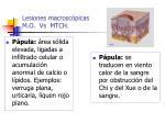 lesiones macrosc picas m o vs mtch27