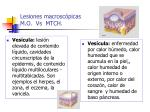 lesiones macrosc picas m o vs mtch28