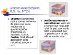 lesiones macrosc picas m o vs mtch29