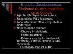 erup o maculopapulosa s ndrome da pele escaldada estafiloc cica