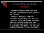 erup o maculopapulosa sarampo11